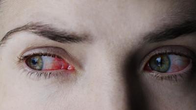 Co zrobić na przekrwione i zaczerwienione oczy